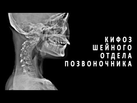 Кифоз шейного отдела позвоночника