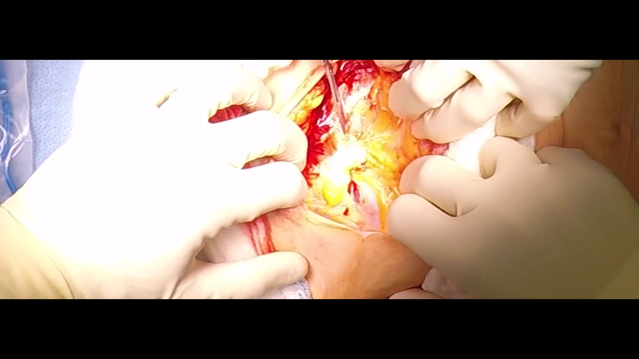 Cesarean Section Obgyn Surgical Techniques With Dr Kerry Campbell