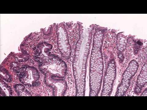 Colon tubular adenoma demonstrating low grade dysplasia / Microscopic diagnosis