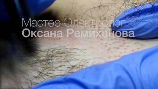 Электроэпиляция зоны бикини Донецк
