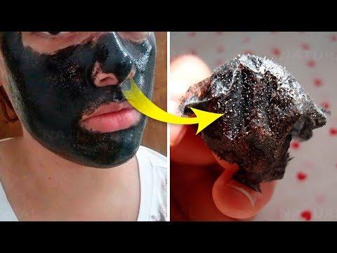 Homemade Charcoal Mask to Remove Blackheads