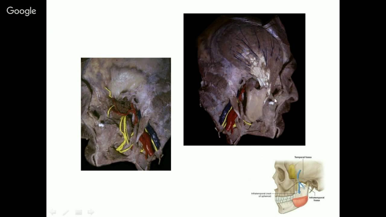 Anatomía Quirúrgica del abordaje fronto-orbito-zigomático. Dra Ana ...