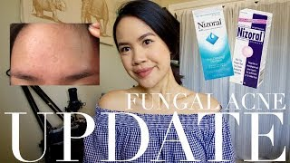 6 MONTH UPDATE ON MY FUNGAL ACNE | jskavee