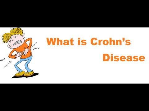 What is Crohn's Disease