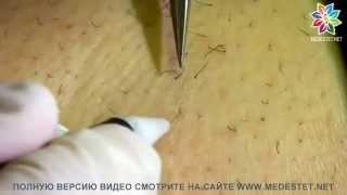 видео Электродепиляторы