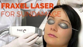 Fraxel Fractional laser resurfacing(Fraxel laser for sundamage Fraxel laser can be used to improve skin texture, decrease acne scars, wrinkling, improve skin tone, and decrease skin pigmentation ..., 2016-04-16T00:42:16.000Z)
