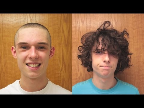 Hair Growth in a Year