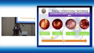 видео Что такое ВПЧ - признаки инфекции, методы диагностики и особенности лечения