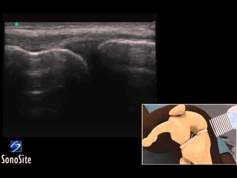 3D How To: Ultrasound Exam of the Meniscus - SonoSite Ultrasound thumbnail