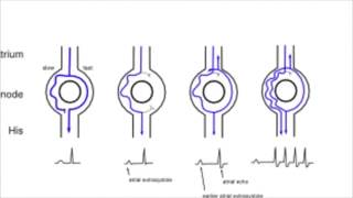 AVNRT (AV-Knoten Reentry-Tachykardien)