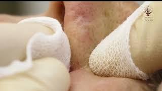 видео Комплексная чистка лица