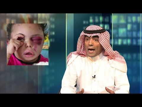 يا داشر: أوقف المجازر والحرب في اليمن