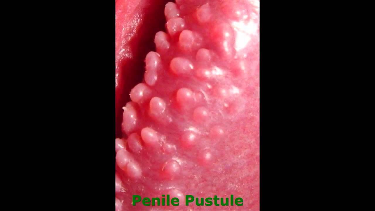 Hirsuties Papillaris Genitalis Home Treatment - YouTube