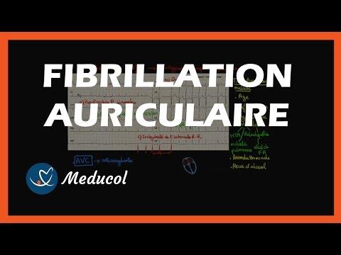 arythmie la fibrillation auriculaire: définition et symptômes