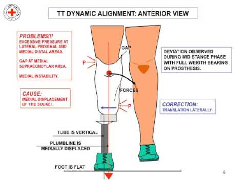 Lower Limb Prosthetic Introduction - Physiopedia