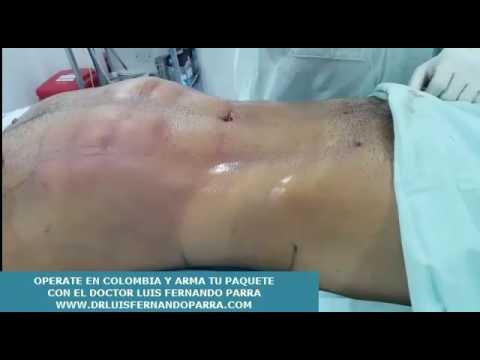 Cirugia plastica Colombia Cucuta doctor luis fernando parra