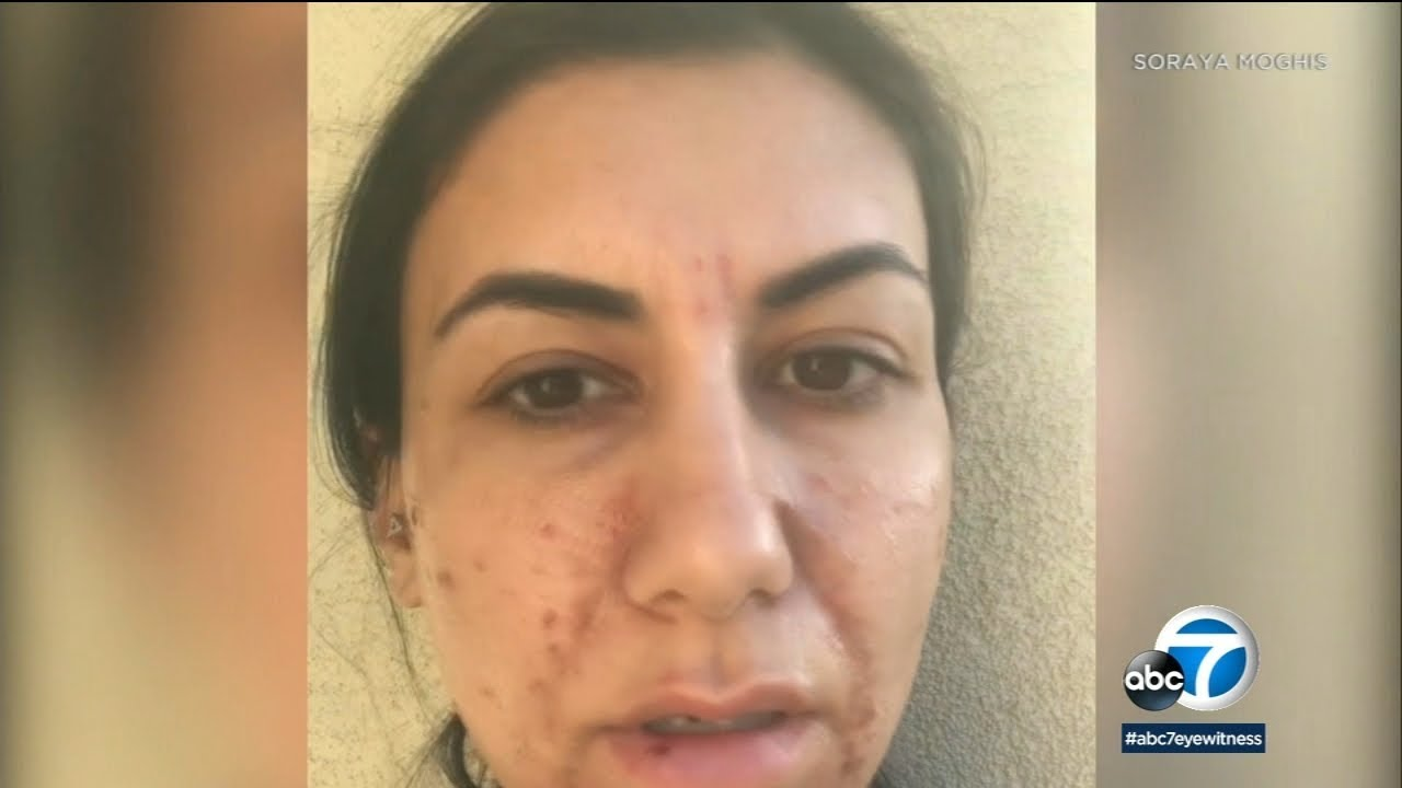 Woman says chemical peel at Menifee ULTA Beauty left her with second-degree  burns | ABC7