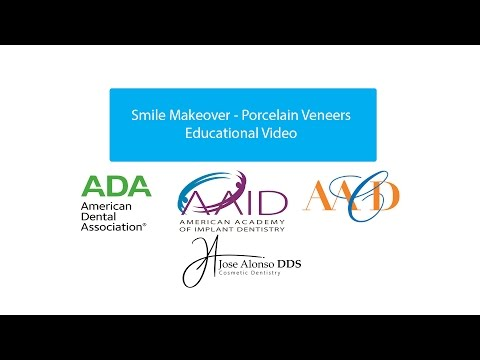 Dr. Alonso Porcelain Veneers Smile Makeover Santo Domingo