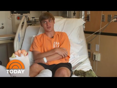 Shark Attack Victim In North Carolina Speaks Out About Terrifying Encounter | TODAY