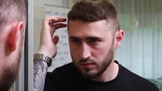 Rezultat implant de păr după 1 an, hairstilist Cristian din Bucuresti