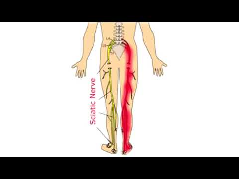 What Causes Sciatica and Can You Get Rid of It?  Sciatica Explained in 4 minutes.