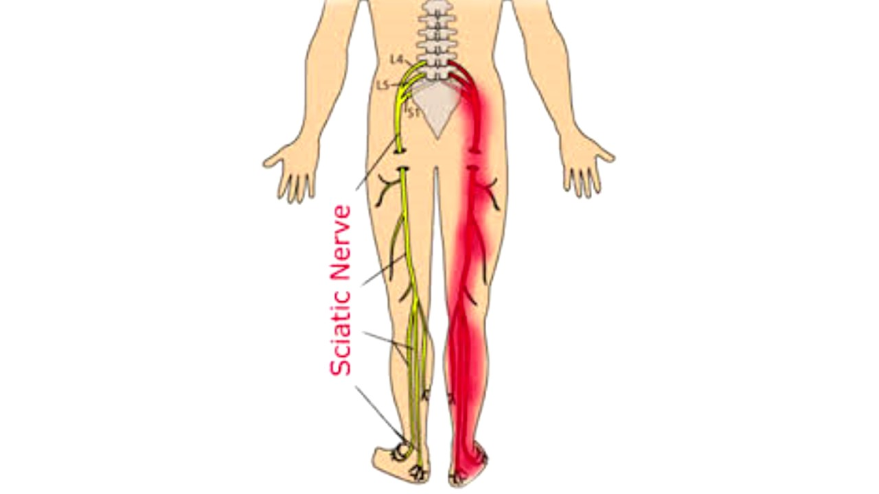 What Causes Sciatica And Can You Get Rid Of It Sciatica Explained In  Minutes