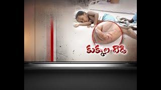 Another Stray Dog Attack in Guntur | 4 Year Old Kid Severely Injured | Ganapavaram