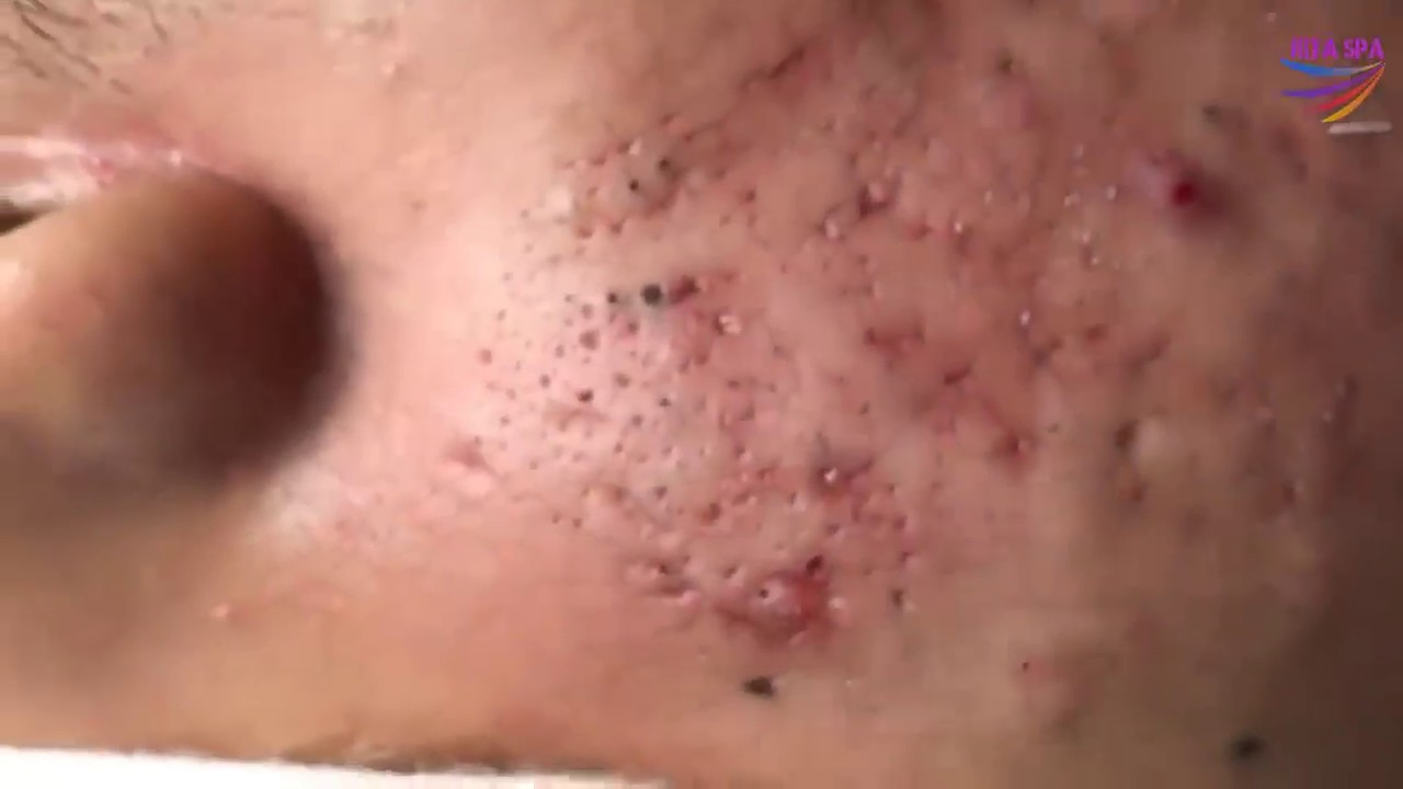BLACKHEADS REMOVAL on face | how to get rid of blackheads ...