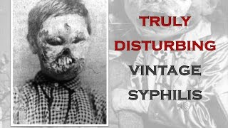 TRULY DISTURBING VINTAGE PHOTOS #7 SYPHILLIS AND OTHER DISEASES