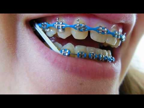 Braces 'Canine Substitution' time-lapse