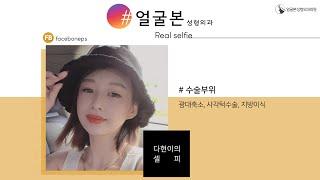 [얼굴본 REAL SELFIE]광대축소, 사각턱수술, …