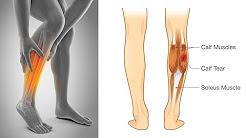 Wie zu stoppen Bein Muskel Krämpfe