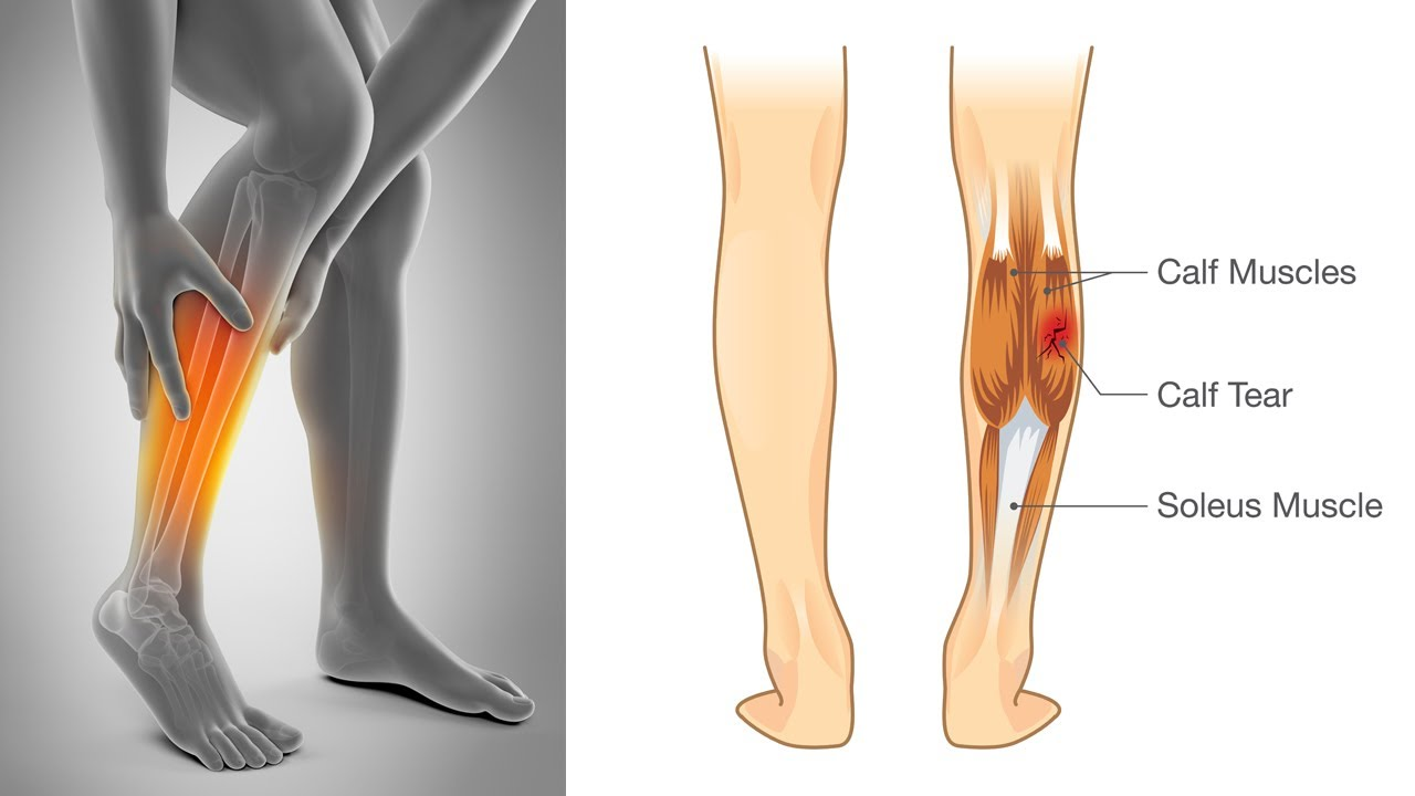 How To Stop Leg Muscle Cramps Youtube