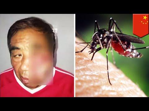 Garuk bekas gigitan nyamuk, pria terkena infeksi mematikan - TomoNews