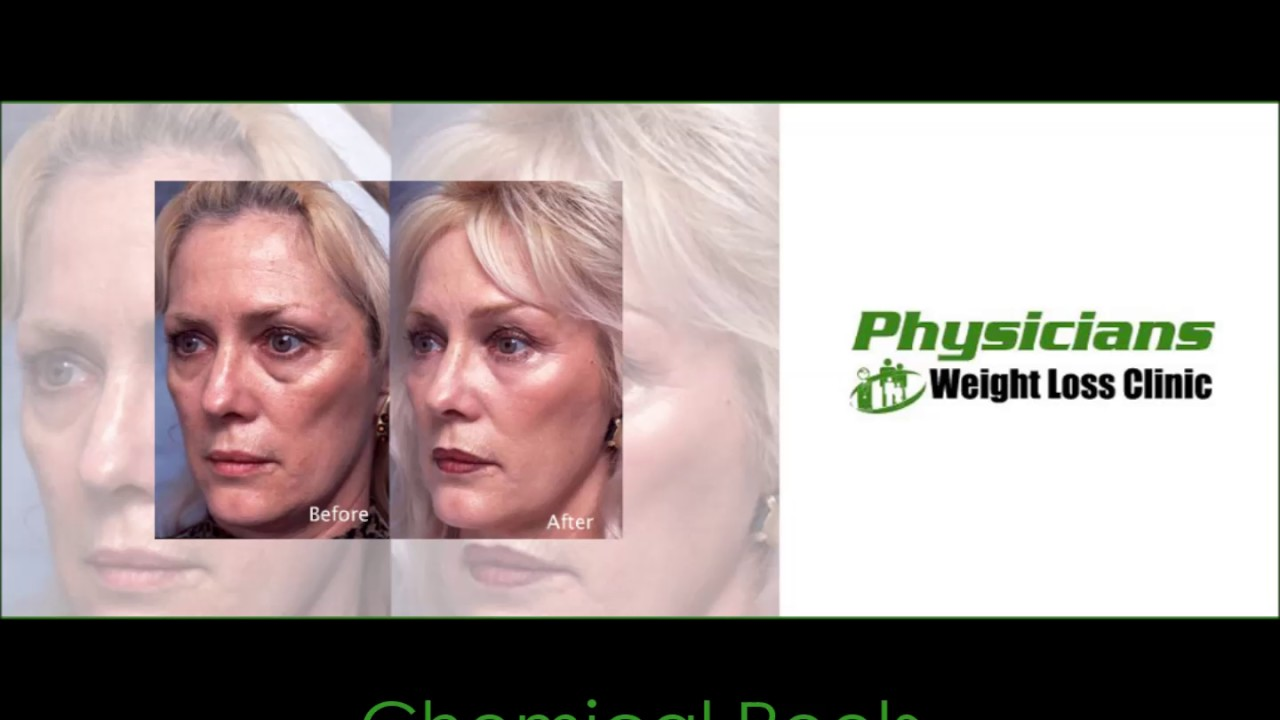 truvision health weight loss images