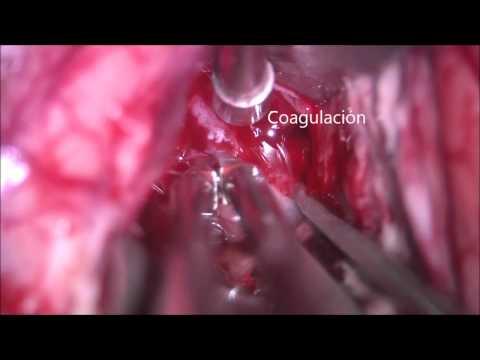 Metastasis Parietal