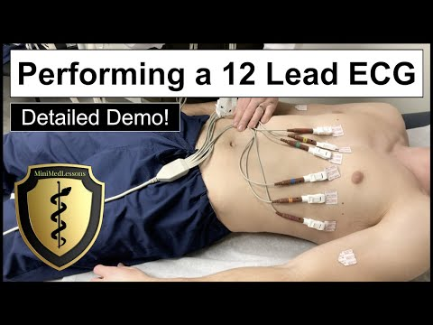12 Lead ECG Placement Example - How To Perform A 12 Lead