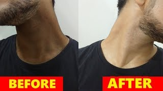How To Get Rid Of DARK NECK For MEN In HINDI ! GET RID OF BLACK NECK NATURALLY ! DARK NECK REMEDIES.