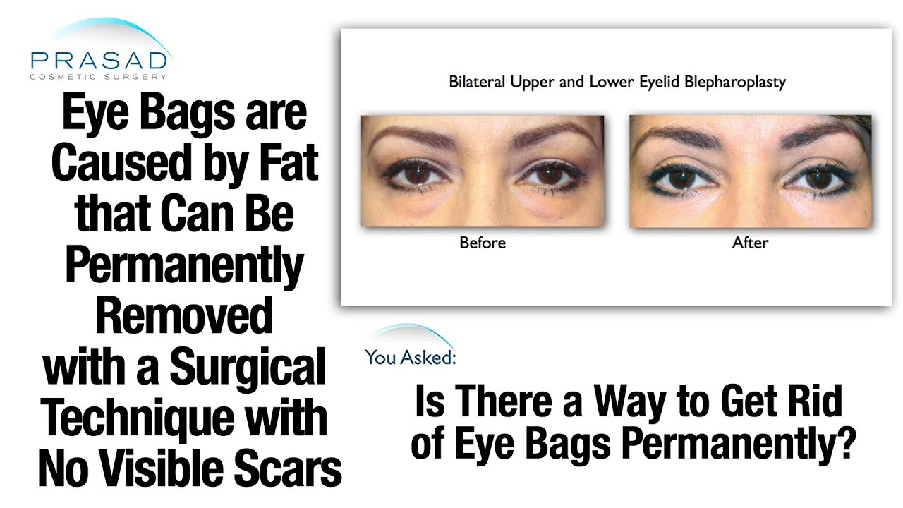 Eye Bags can be Removed Permanently without a Scar or Trace