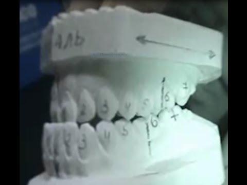 Лечение мезиального прикуса с челюстно-лицевой хирургией
