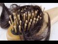 وصفة طبيعية بسيطة تمنع تساقط الشعر| منع تساقط الشعر وتكثيفه | وصفة لعلاج تساقط الشعر ومنع الصلع