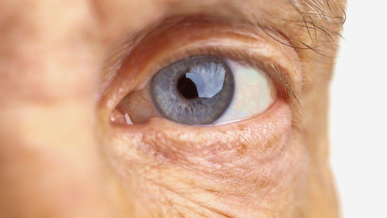 lente de contato google diabetes síntomas