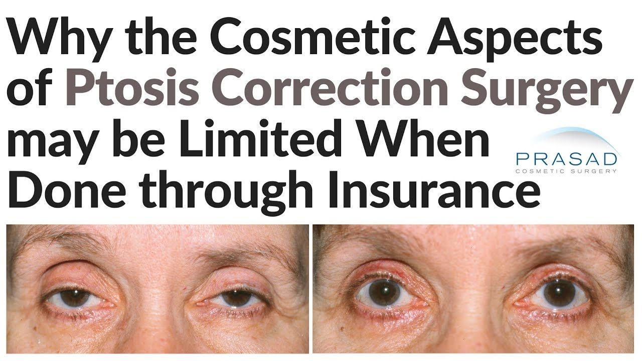 Why Eyelid Ptosis Surgery Covered by Insurance Does Not