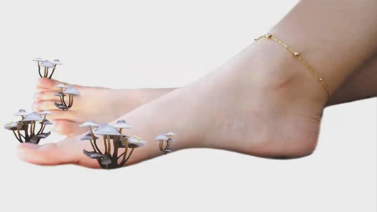 Вросший ноготь на ноге причина и лечение
