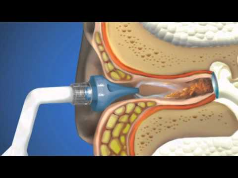 OtoClear Ear Irrigation