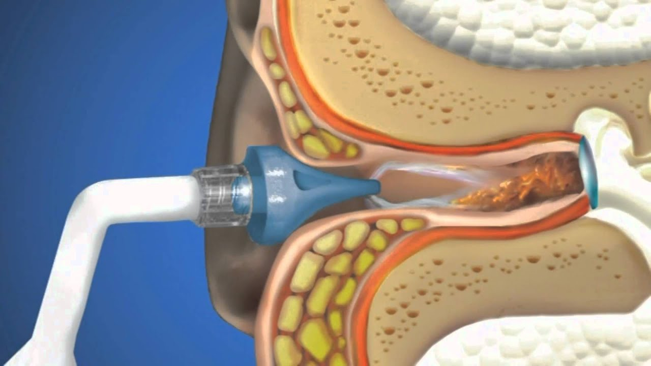 otoclear ear irrigation - youtube, Skeleton