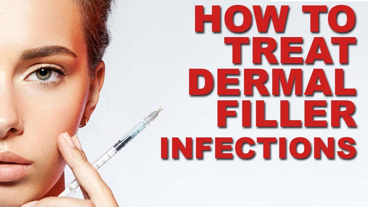 HOW TO TREAT DERMAL FILLER INFECTIONS - BOTOX TREATMENT - XTREME TRUTH(SKIN  HEALTH CARE)