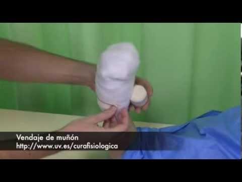 El cuello uterino la várice varicosa