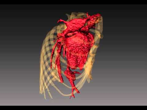 High Resolution In Vivo microCT of Mouse Heart