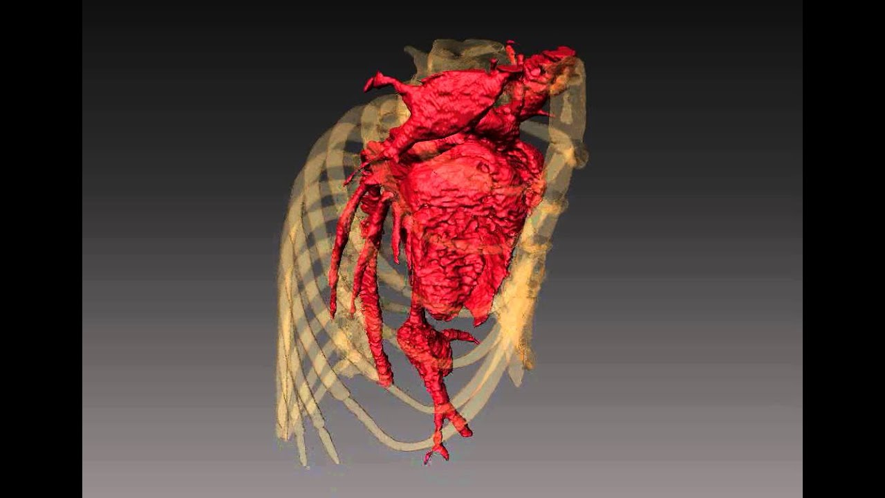 High Resolution In Vivo microCT of Mouse Heart - YouTube